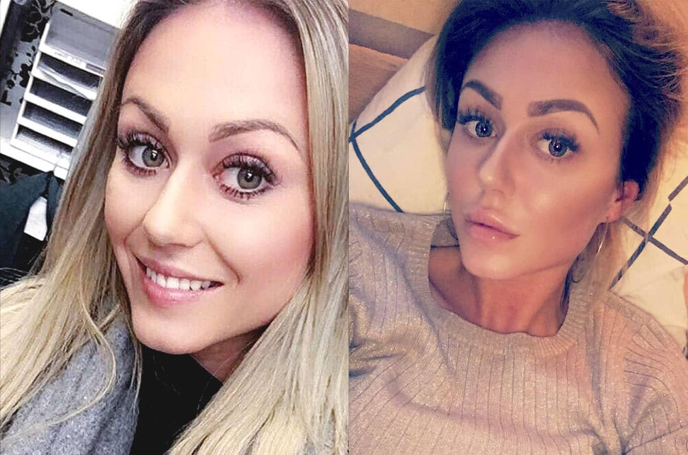 Amanda blogger: Sådan blev resultatet med mine nye læber
