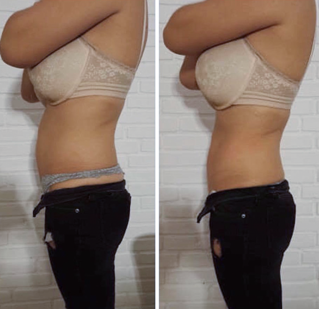 Kom fedtet til livs: Beauty By Em introducerer populær Cryo21-behandling